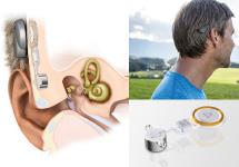 Bone Conduction Implant